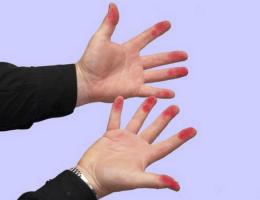 Руки в фукорцине